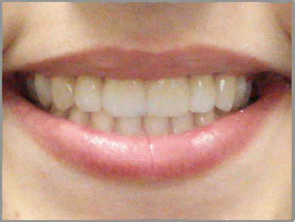 Gaps-unportioned-teeth-after1
