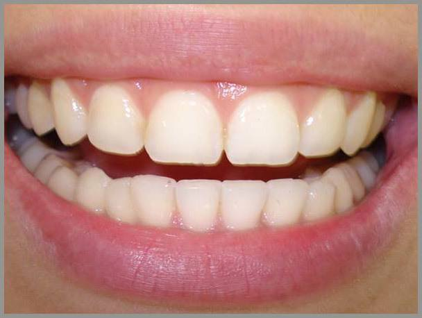 Gingival-Recontouring-after1