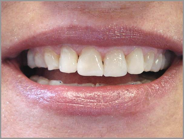 Worn-Teeth-Bruxism-after