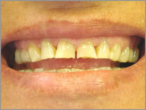 Worn-Teeth-Bruxism-before