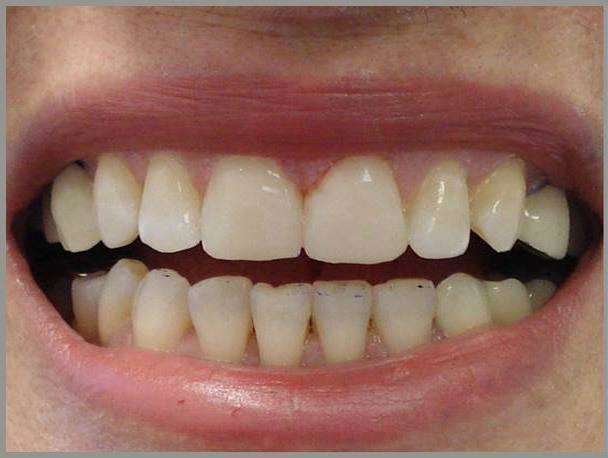 Worn-Teeth-and-Gap-after1