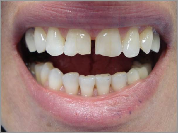 Worn-Teeth-and-Gap-before