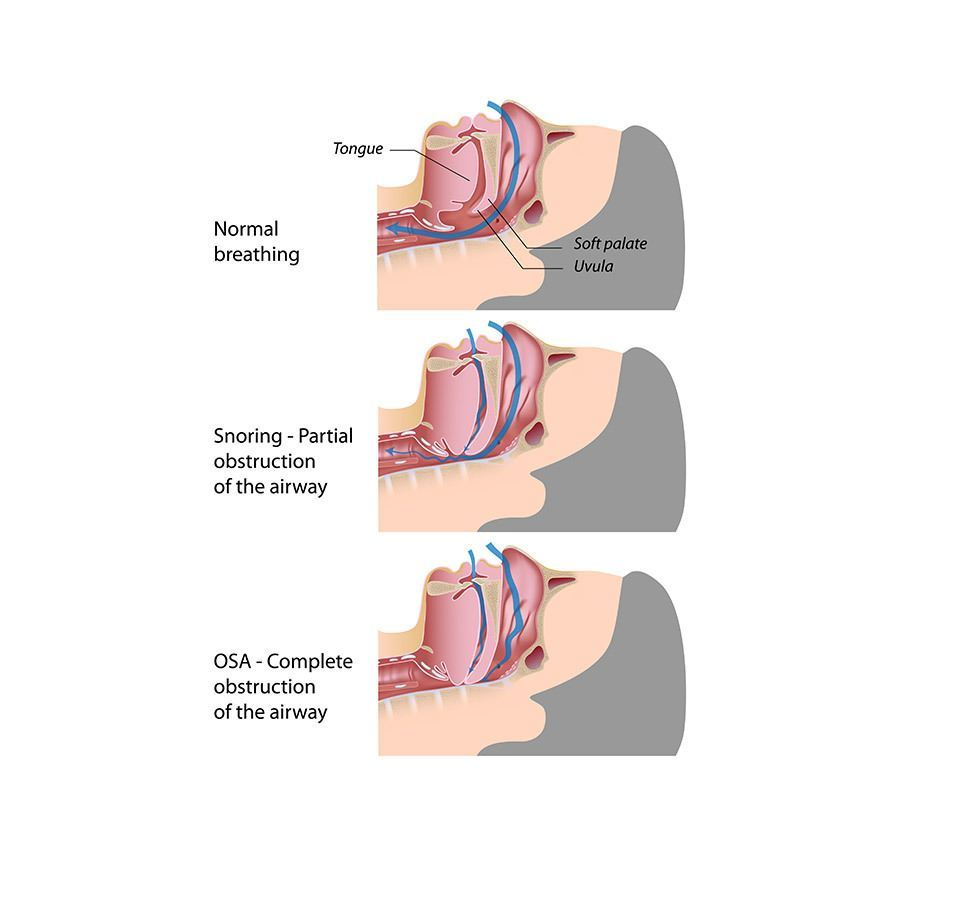 sleep apnea toronto