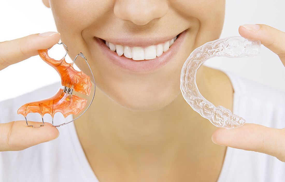 orthodontic_options01