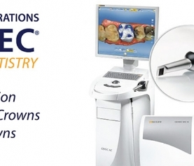 3 Benefits of CEREC Crowns