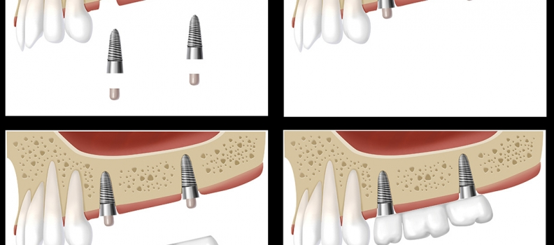 Implants vs Bridges. Which do I choose?